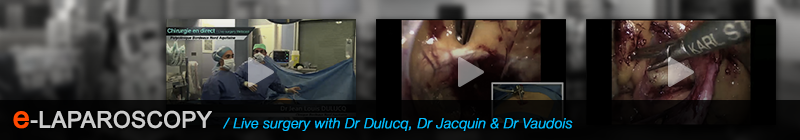 E-Laparoscopy Webcasts